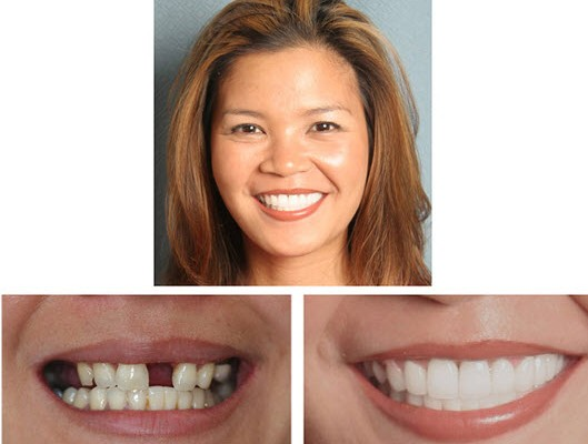 Cosmetic Dentist Glen Ellyn--Lumineers Wheaton IL patient