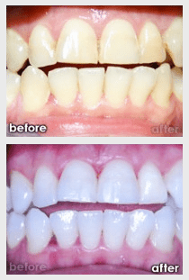 Tooth Whitening & Bleaching Glen Ellyn Wheaton